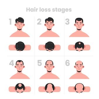 Fasi di perdita di capelli disegnate a mano piatta