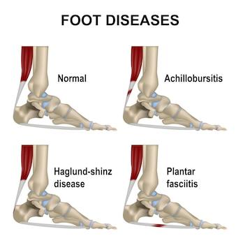 Articolazione del piede, piede normale e malattie. fascite plantare, achillobursite, malattia di haglund-shinz