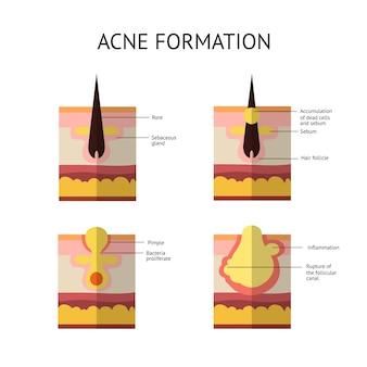 Formazione di acne o brufolo cutaneo. il sebo nel poro ostruito favorisce la crescita di alcuni batteri. propionibacterium acnes. questo porta al rossore e all'infiammazione associati ai brufoli.