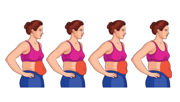 Quattro tipi di pancia nelle donne. vista laterale della donna in sovrappeso. aree problematiche nelle donne sullo stomaco Vettore Premium