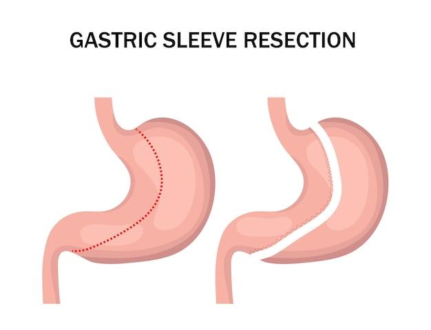 Resezione del manicotto gastrico infografica. intervento chirurgico di riduzione dello stomaco per dimagrire.
