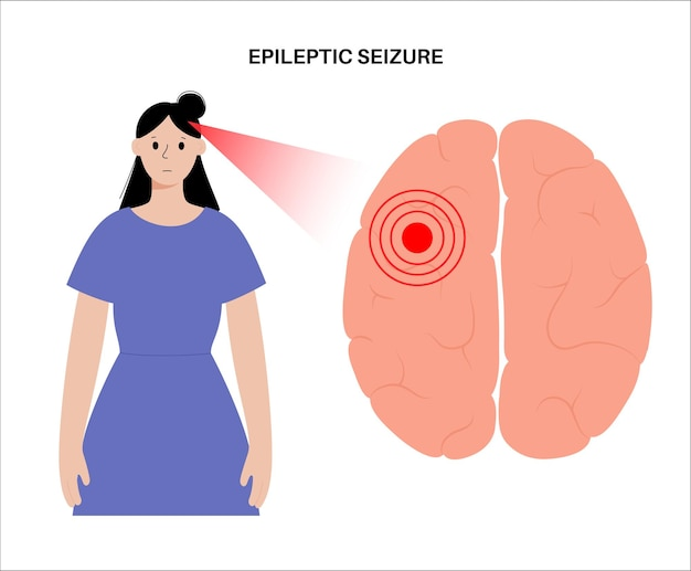 Convulsioni generalizzate o parziali. epilessia e attività cerebrale anormale. dolore o emicrania nella testa umana