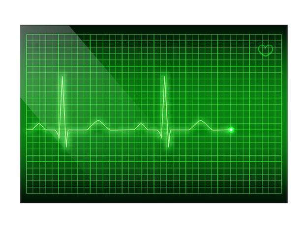 Frequenza cardiaca linea verde sullo schermo, sfondo dell'elettrocardiogramma.