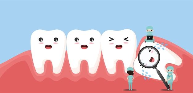 Un gruppo di piccoli dentisti si prende cura di un grande dente. carattere del dente del giudizio colpito che spinge i denti adiacenti causando infiammazione, mal di denti, dolore alle gengive.