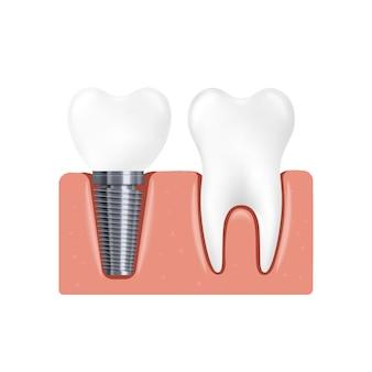 Gomma con impianto dentale e illustrazione realistica di vettore del dente normale isolata
