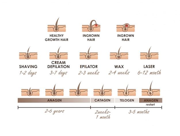Capelli con crescita sana. peli incarniti. fasi di crescita dei capelli diversi metodi di depilazione. tipi di epilazione con azioni della sequenza temporale