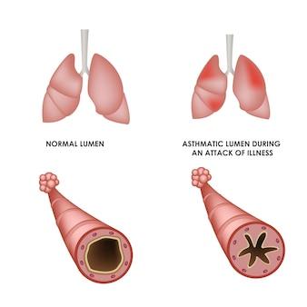 Polmoni sani e polmoni con malattia asmatica illustrazione medica realistica