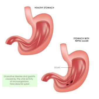 Stomaco sano e ulcere allo stomaco illustrazione medica realistica