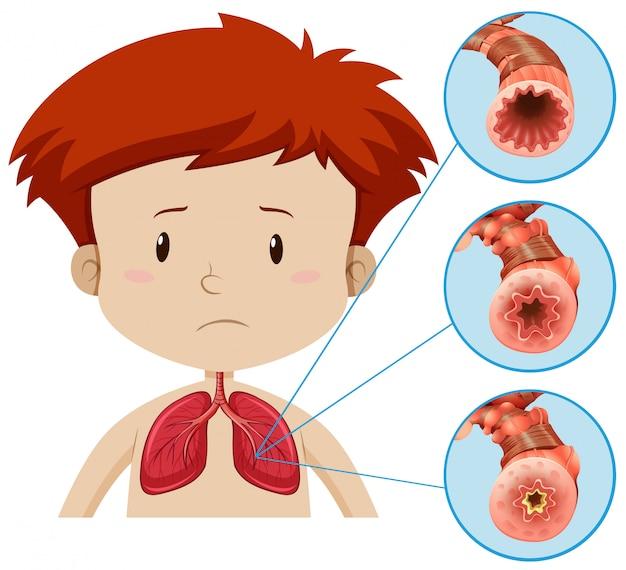 Un'anatomia umana del problema polmonare