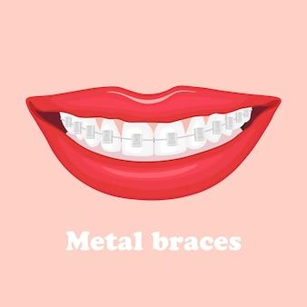 Le labbra umane sorridono con l'apparecchio dentale in metallo sui denti