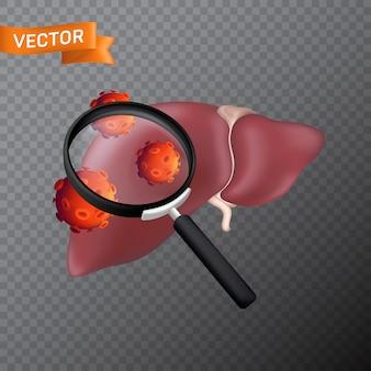 Fegato umano sotto una lente d'ingrandimento con cellule virali. illustrazione medica di trovare virus o cercare nell'organo interno con una lente di ingrandimento isolata su uno sfondo trasparente