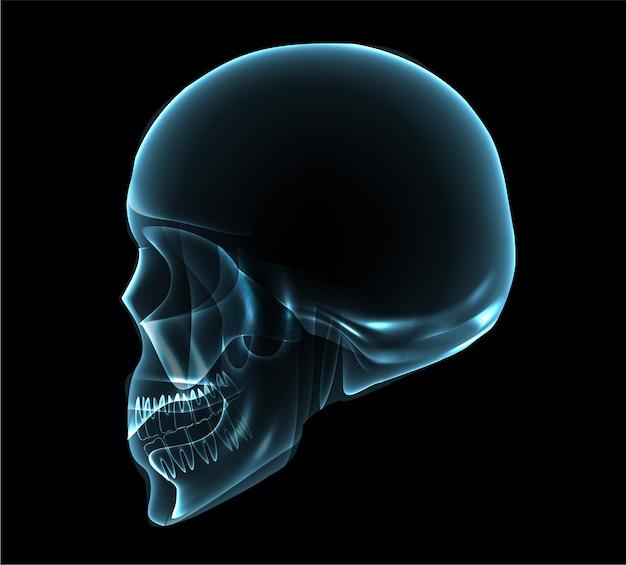 Illustrazione di x-ray vista laterale cranio umano