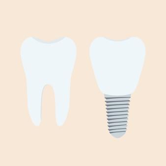 Denti umani e impianto dentista in stile cartone animato piatto.