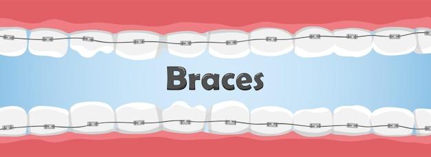 Denti umani con parentesi graffe in bocca. denti storti. concetto di cure odontoiatriche.