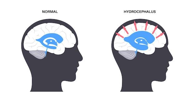 Concetto di derivazione dell'idrocefalo. pressione sul cervello piatto medico illustrazione vettoriale.
