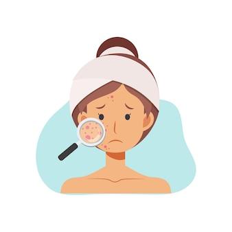 Illustrazione su problemi di pelle acne concetto. la donna con la lente d'ingrandimento sta cercando l'acne sul suo viso.