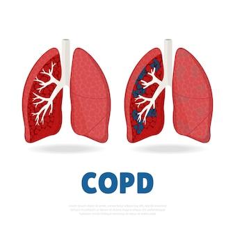 Illustrazione della malattia polmonare ostruttiva cronica.