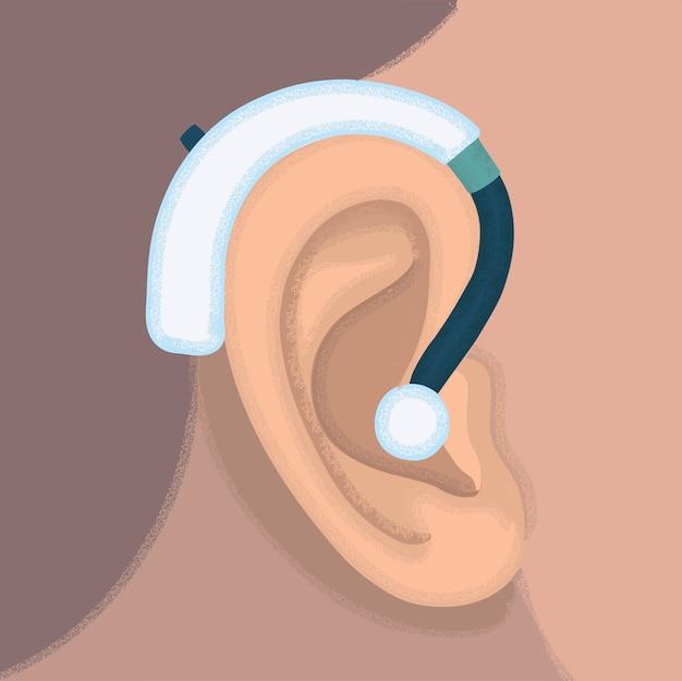 Illustrazione dell'orecchio e dell'apparecchio acustico