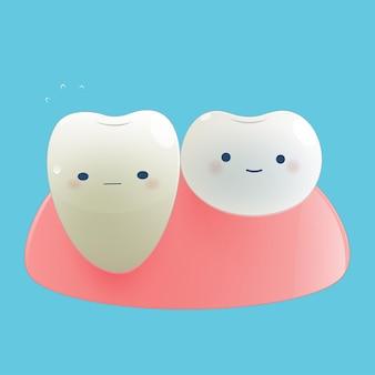 Recessione gengivale di illustrazione. concetto dentale