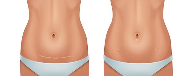 Illustrazione della pelle umana cicatrici guarite dopo l'operazione cesareo