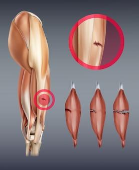 Illustrazione della lesione muscolare alla gamba Vettore Premium