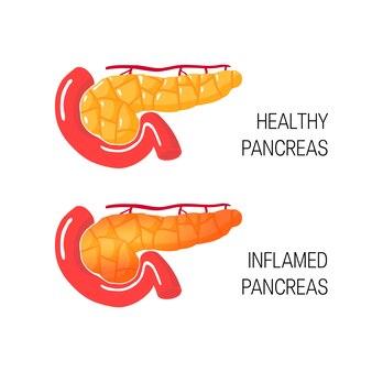 Infiamma il concetto di pancreas. medico di ghiandola sana e malato.