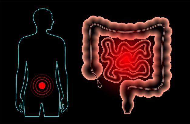 Infiammazione e dolore nell'intestino umano. malattia infiammatoria intestinale, colite ulcerosa, infezioni gastrointestinali o cancro del colon-retto. esame medico dell'illustrazione vettoriale 3d degli organi interni