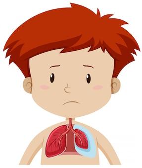Un bambino con malattia polmonare