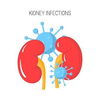 Concetto di infezione renale isolato su bianco