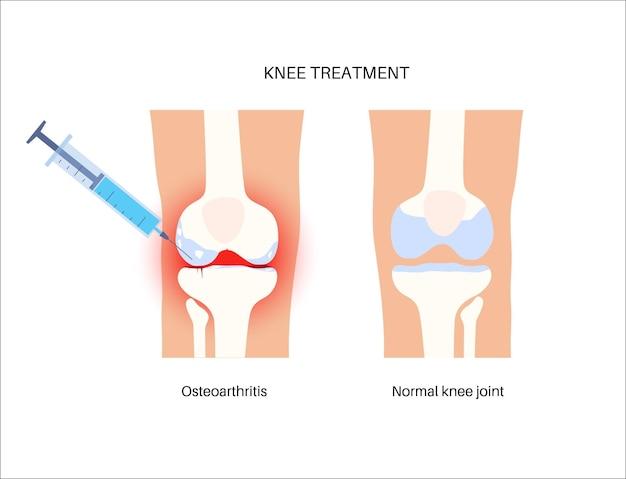 Concetto di iniezione alla gamba. ginocchio infiammato e normale dopo il trattamento con prp.