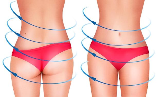 Linee, che mostrano un intervento chirurgico sul corpo femminile.