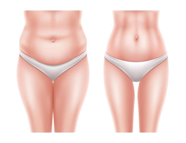 Concetto di chirurgia di liposuzione con corpo di donna nuda prima e dopo l'operazione