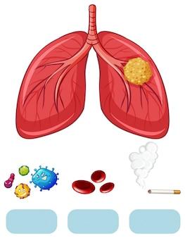 Diagramma del cancro al polmone con virus e sigaretta