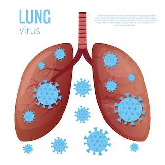 Illustrazione di malattia polmonare su sfondo bianco