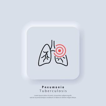 Polmoni. icona di polmonite. asma o tubercolosi. infiammatorio nei polmoni. vettore. icona dell'interfaccia utente. pulsante web dell'interfaccia utente bianca ui ux neumorphic. neumorfismo