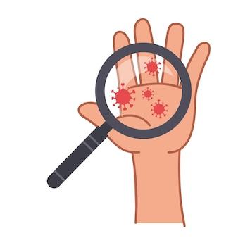 La lente d'ingrandimento è puntata sulla mano con virus e batteri del coronavirus su un primo piano del palmo sporco