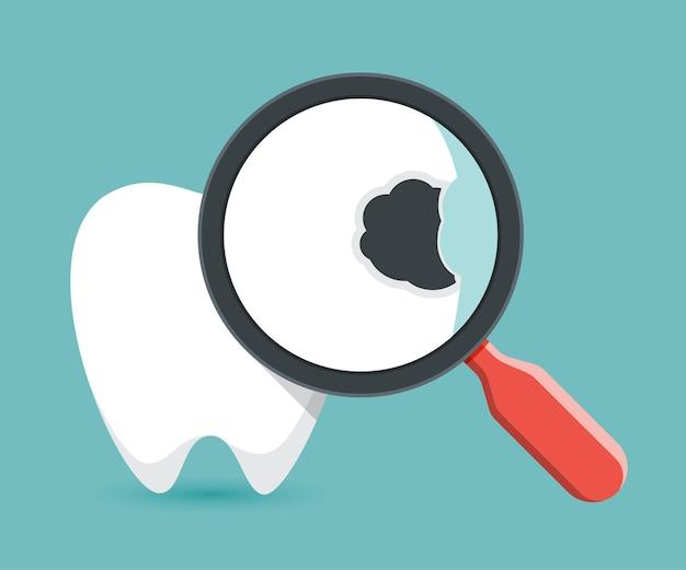 Lente d'ingrandimento su una carie dentale, controllo dei denti.