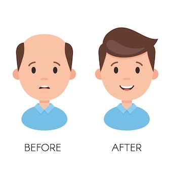 Perdita di capelli maschile