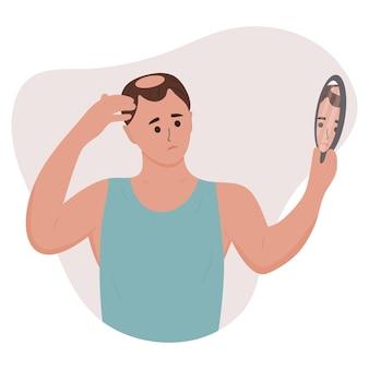 Uomo che guarda allo specchio la sua calvizie alopecia da perdita di capelli nei problemi dei capelli in giovane età