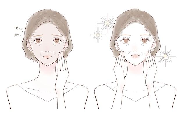 Donna di mezza età che soffre di pelle opaca. prima e dopo. su uno sfondo bianco.