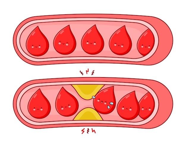 Vasi sanguigni normali e ostruiti. illustrazione di carattere kawaii del fumetto di linea piatta. isolato su sfondo bianco.