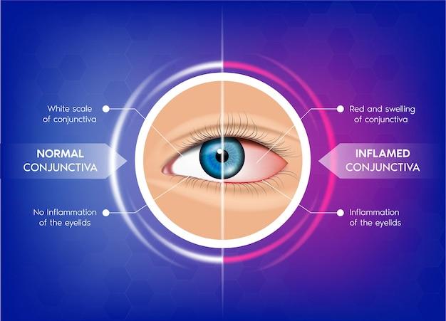 Congiuntiva normale e congiuntivite occhio sano e occhio rosa