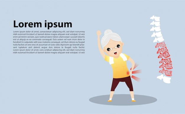 Donna anziana con modello di osteoporosi