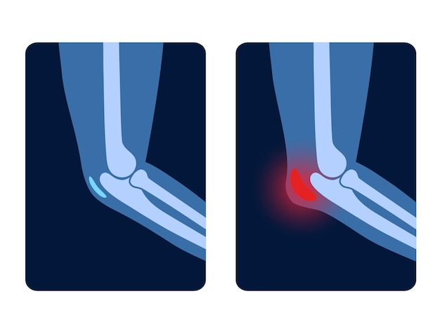 Borsite dell'articolazione dell'olecrano. borsa infiammata. malattia del gomito degli studenti, dolore e deformità nelle braccia umane