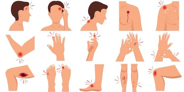 Dolore nel corpo umano parti set di lesioni fisiche piatte.