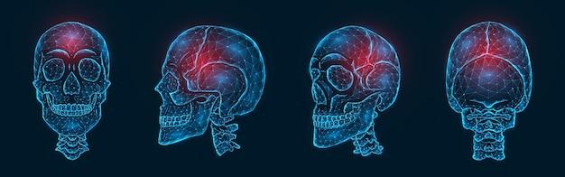 Dolore, lesione o infiammazione dell'illustrazione poligonale delle ossa del cranio. modello low poly di un teschio umano
