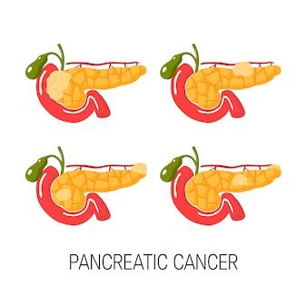 Concetto di cancro al pancreas. serie di illustrazioni mediche con tumori in luoghi diversi