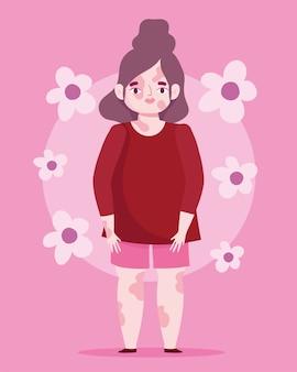 Perfettamente imperfetta, bella donna del fumetto con vitiligine della pelle problema, sfondo di fiori rosa