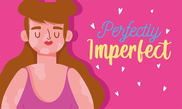 Perfettamente imperfetta, donna dei cartoni animati con la malattia della vitiligine