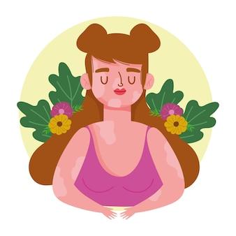 Donna perfettamente imperfetta con vitiligine e fiori personaggio dei fumetti illustrazione